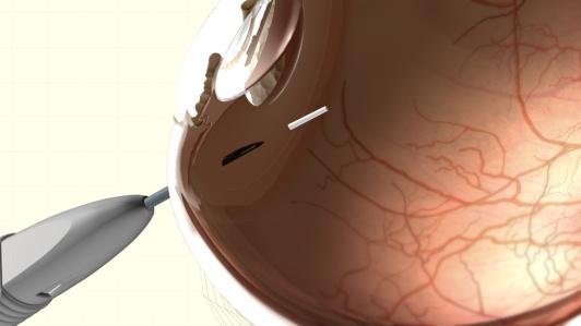 Ozurdex Steroid Implant